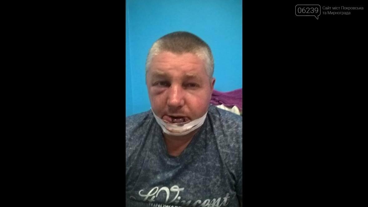 В Покровском районе жестоко избили участника боевых действий , фото-4