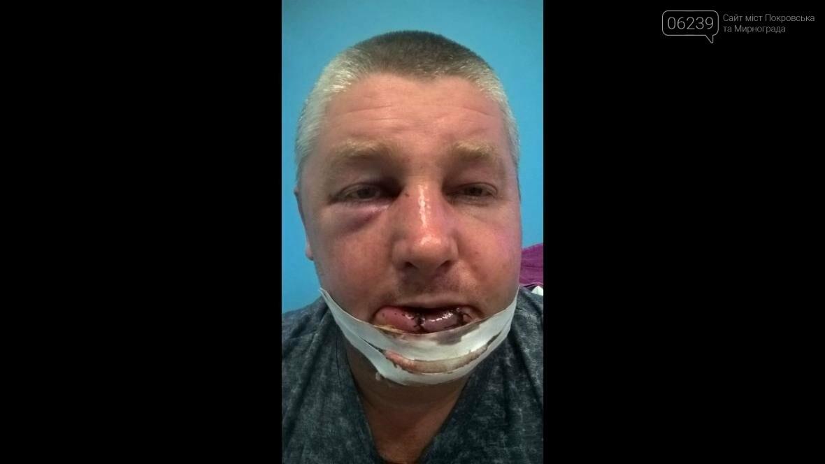 В Покровском районе жестоко избили участника боевых действий , фото-3