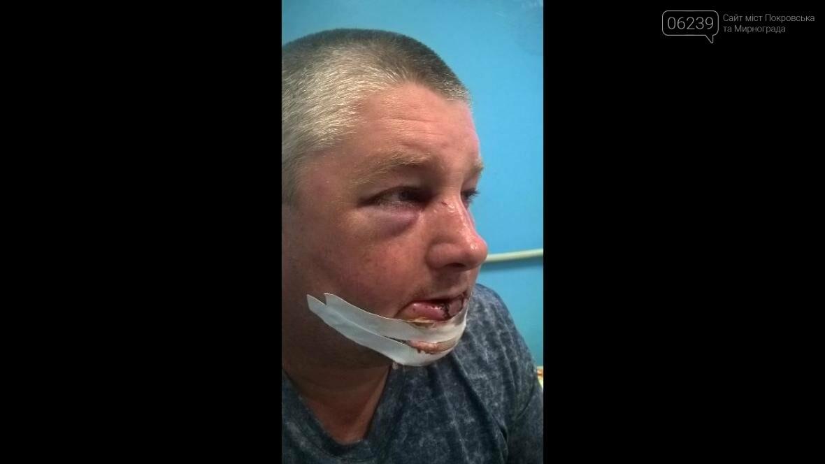 В Покровском районе жестоко избили участника боевых действий , фото-1