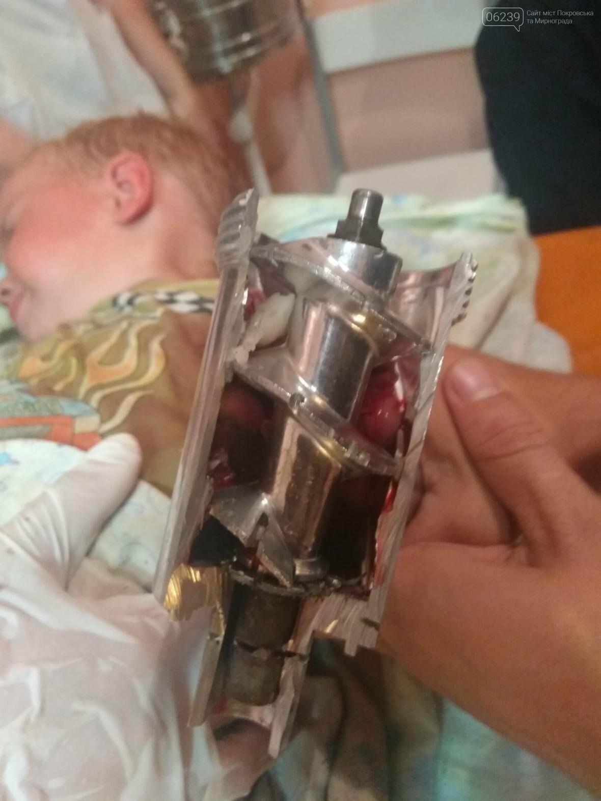 Двухлетний мальчик засунул руку в электрическую мясорубку, - Покровский отдел полиции, фото-1